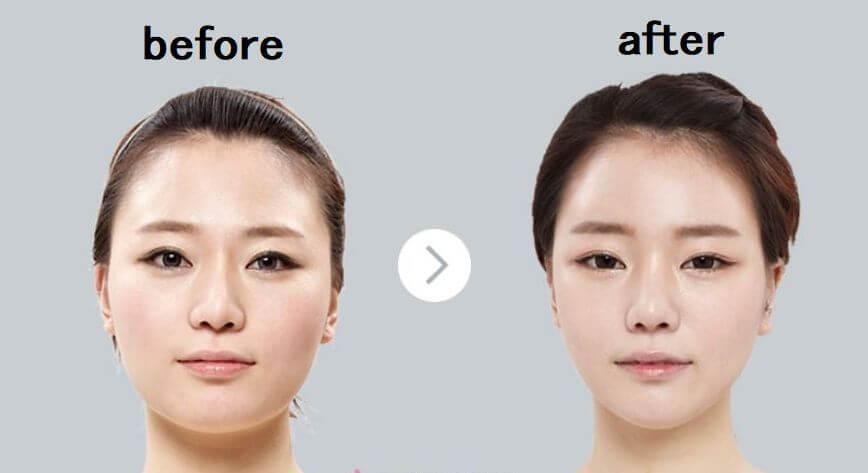 韓国コルギは顔のたるみ・ほうれい線の改善にも