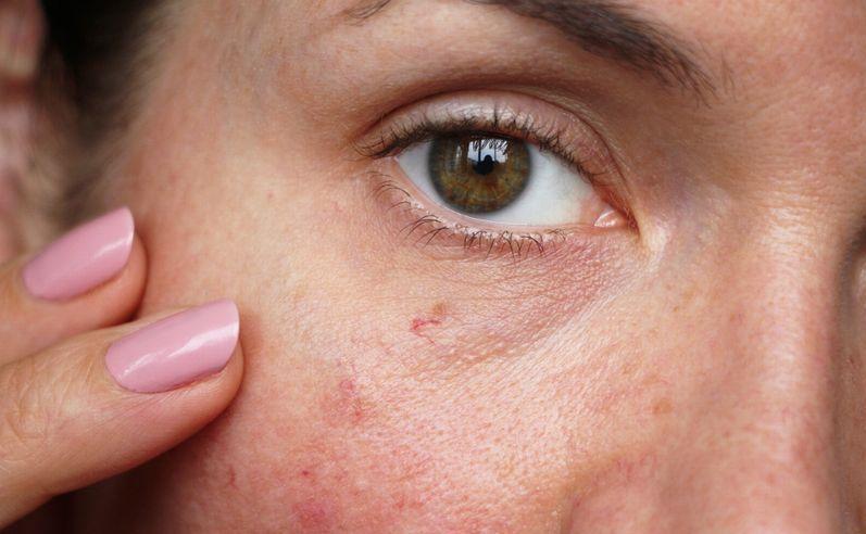 ヒト幹細胞エステの効果②敏感肌を改善