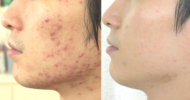アゼ男流!ニキビ予防で皮脂顔を改善! | オールインワンジェル比較.com